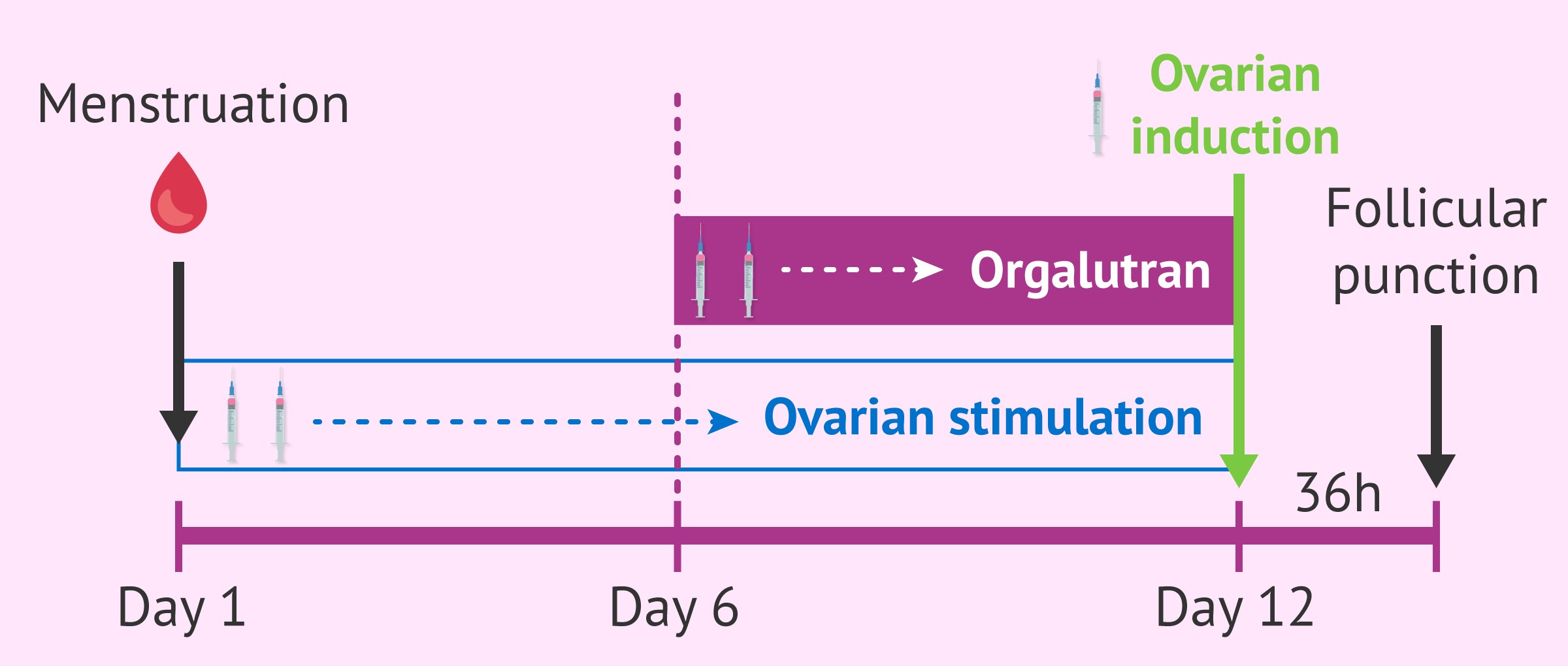 Imagen: Short cycle with Orgalutran