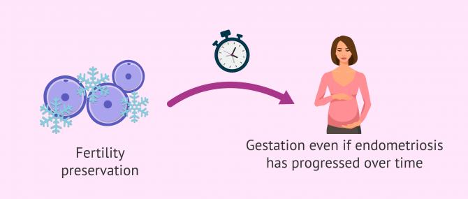 Imagen: Endometriosis and fertility preservation