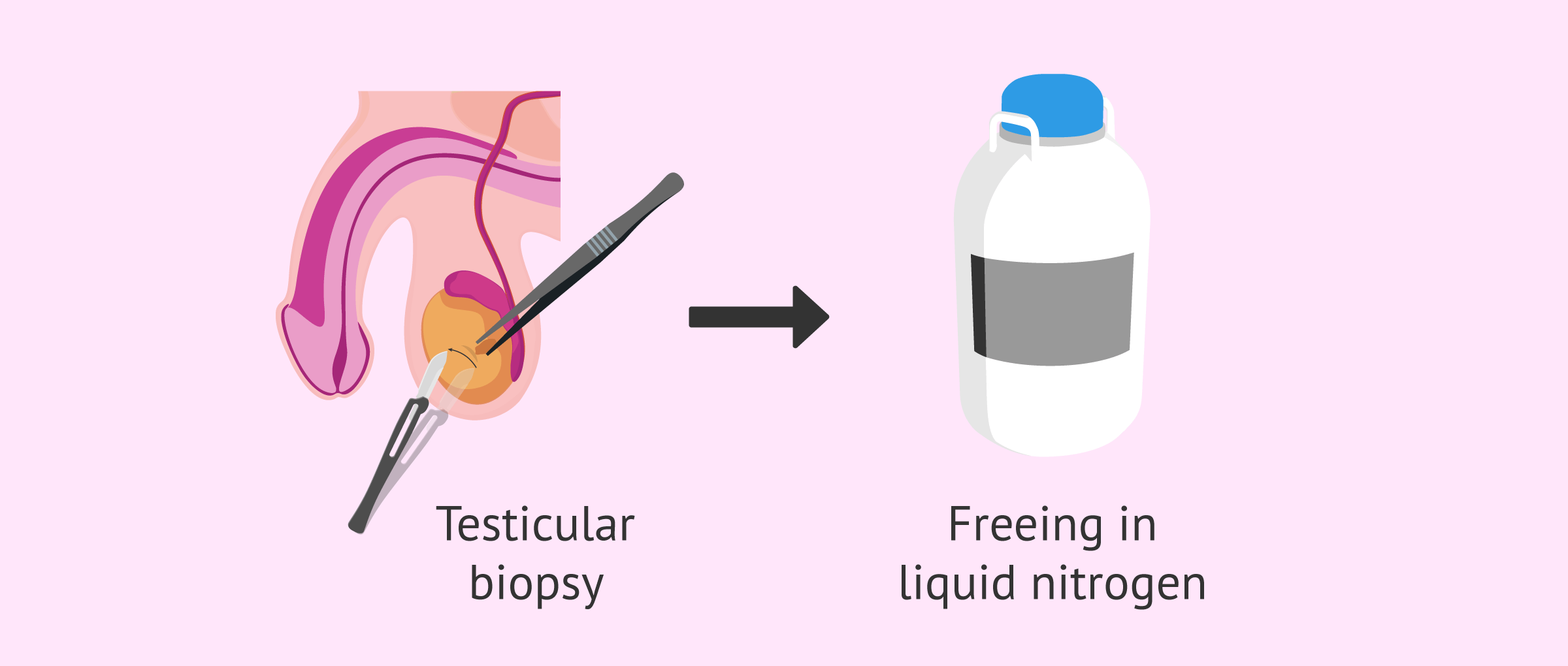 Technique used for the freezing of testicular tissue
