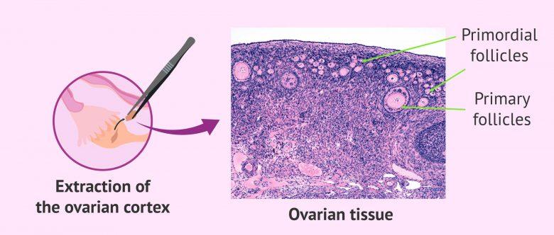 Embryo and sperm cryopreservation
