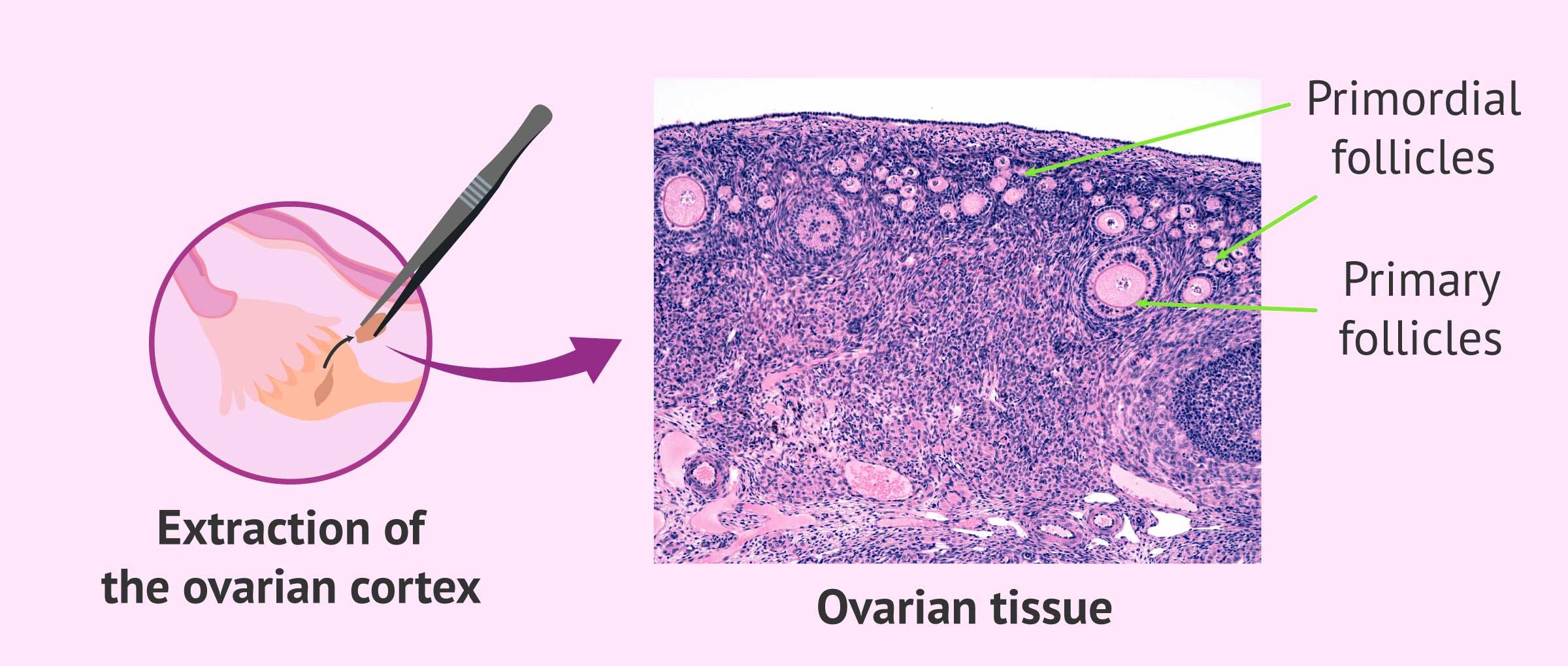 Ovarian cortex tissue