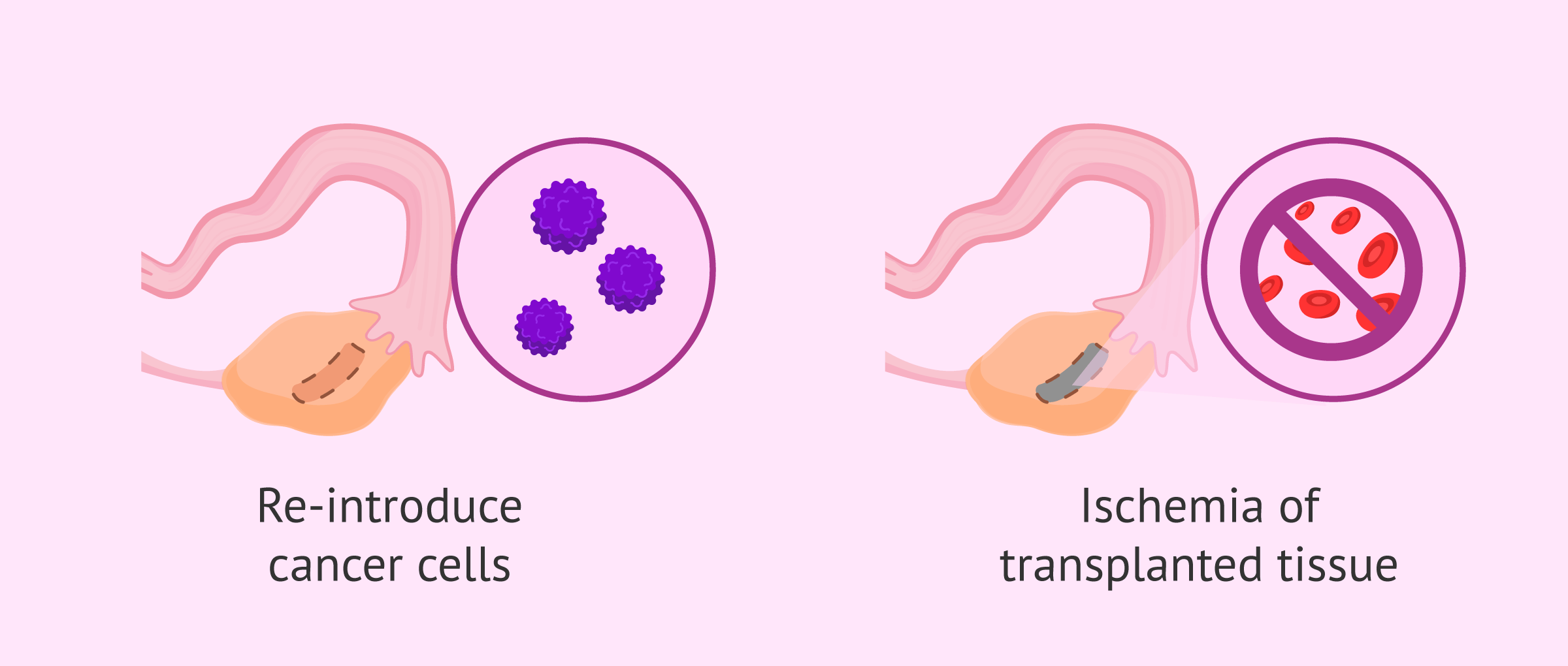 Limitations of Ovarian Tissue Transplantation