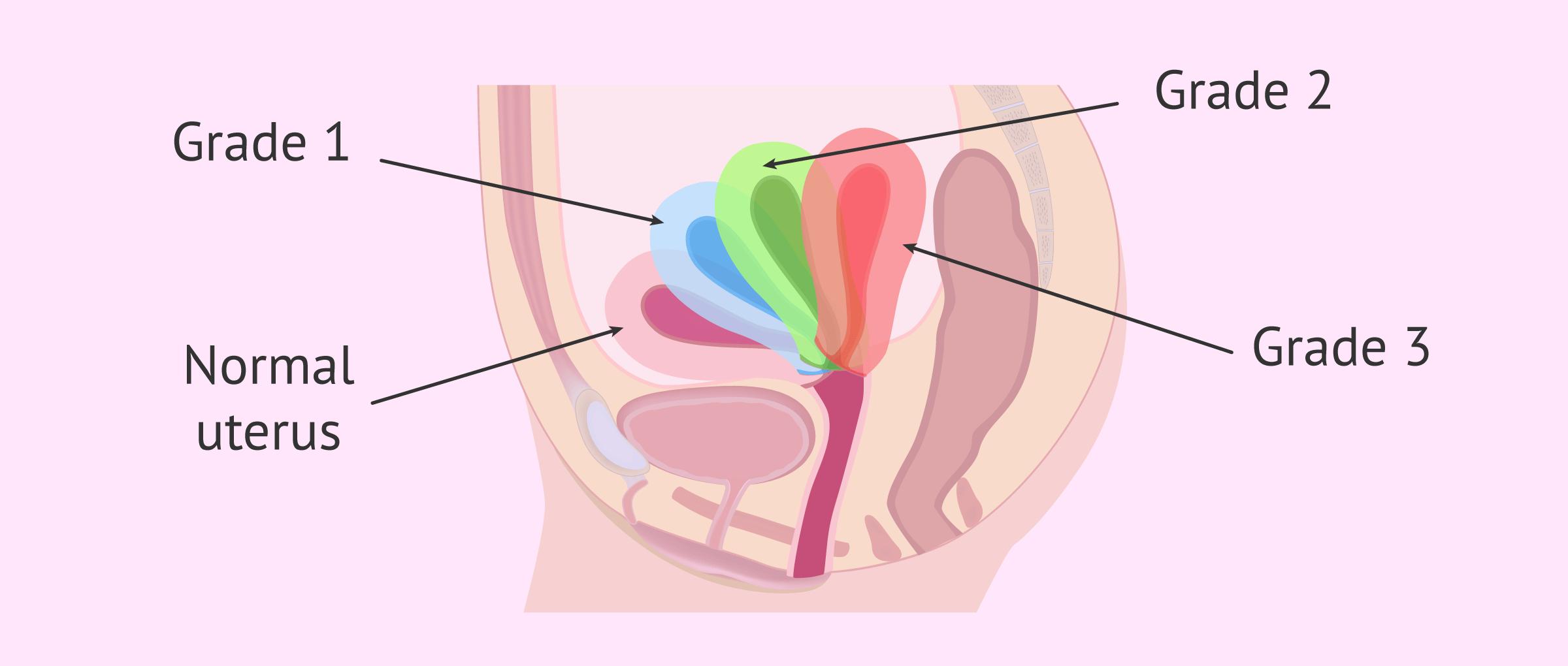 grades of tipped uterus