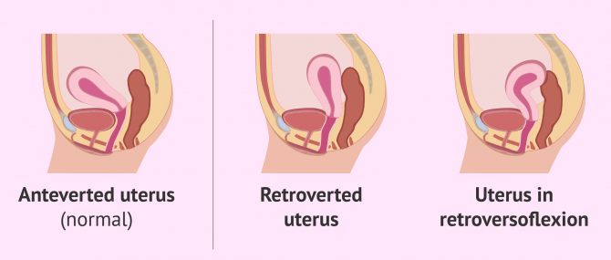 Uterus Tipped Backwards: Causes & Symptomes of Retroverted Uterus