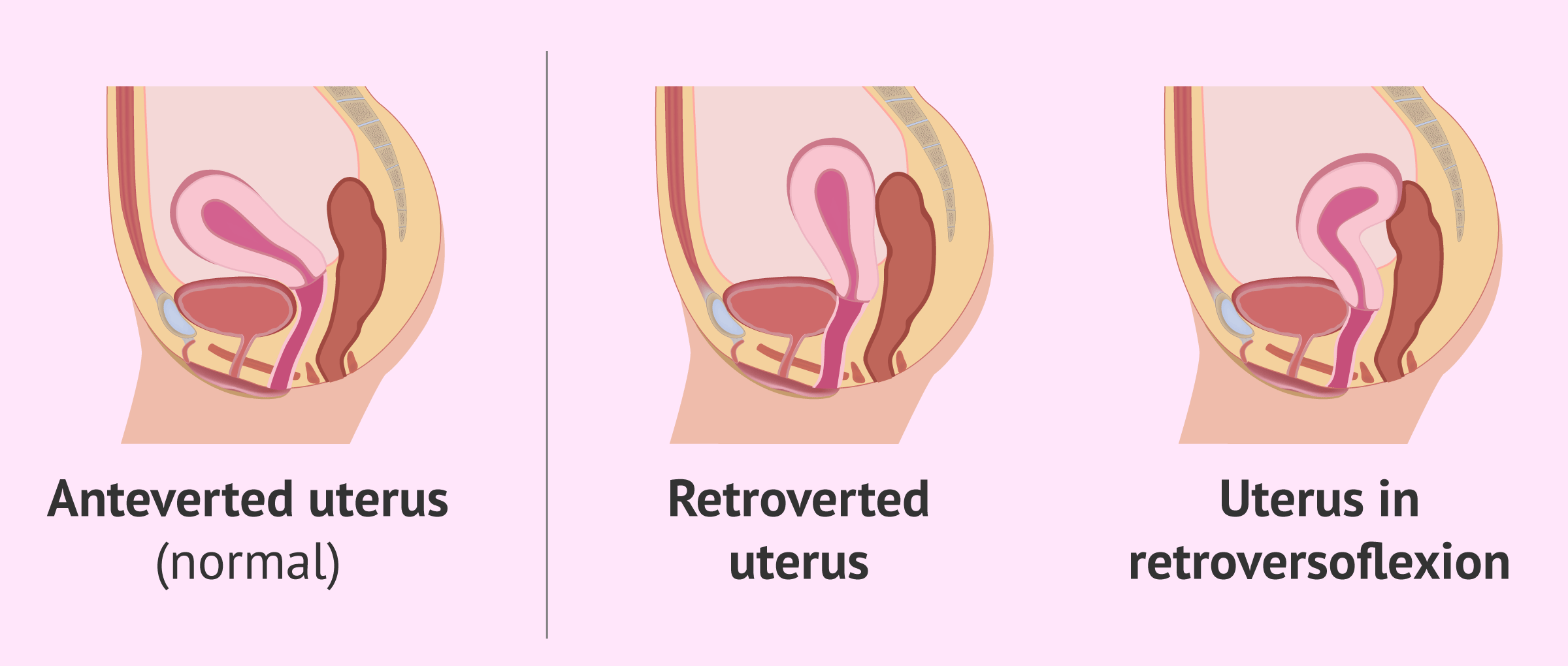 Imagen: Different posititions of the uterus