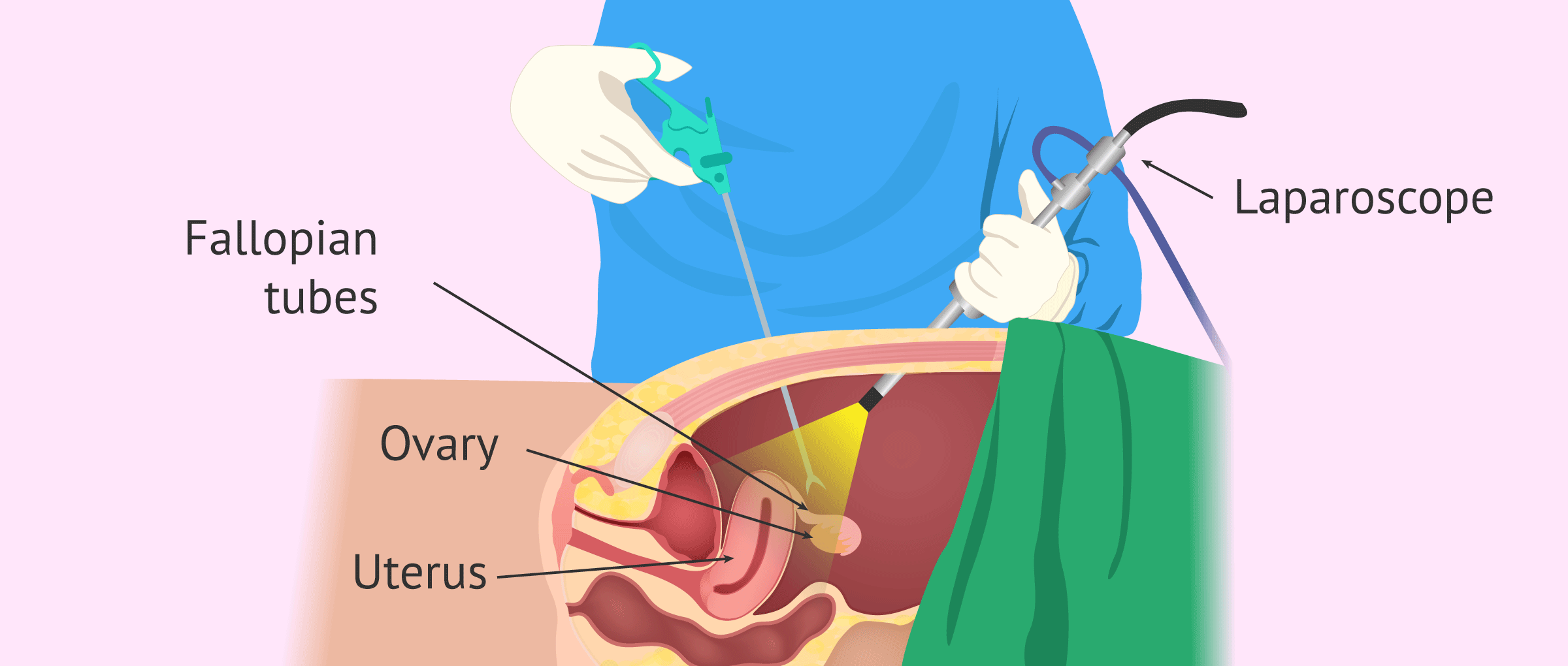 Salpingectomy: How are Fallopian Tubes Extracted?