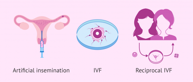 Imagen: Assisted reproductive technology for lesbian motherhood