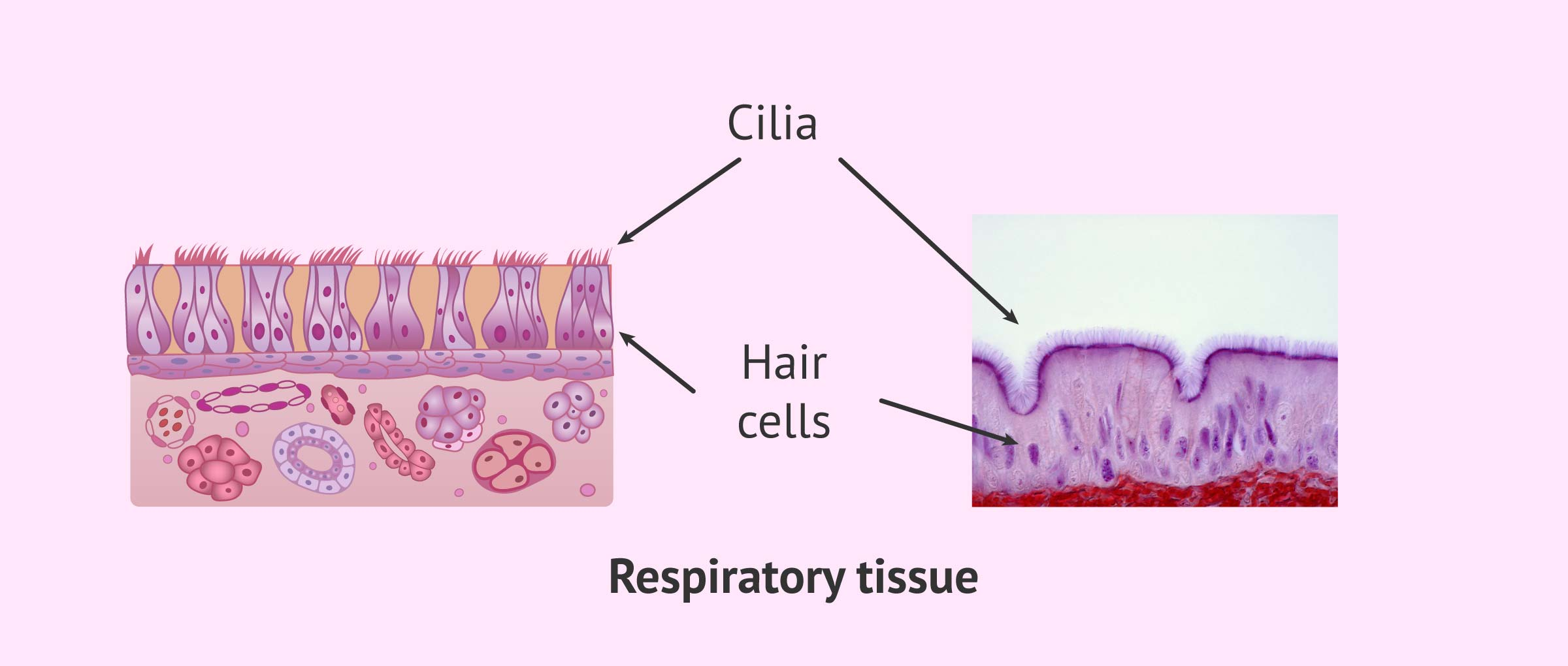 Ciliary Respiratory Epithelium and Kartagener's Syndrome