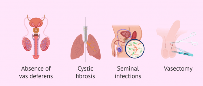 Imagen: When is testicular biopsy performed?