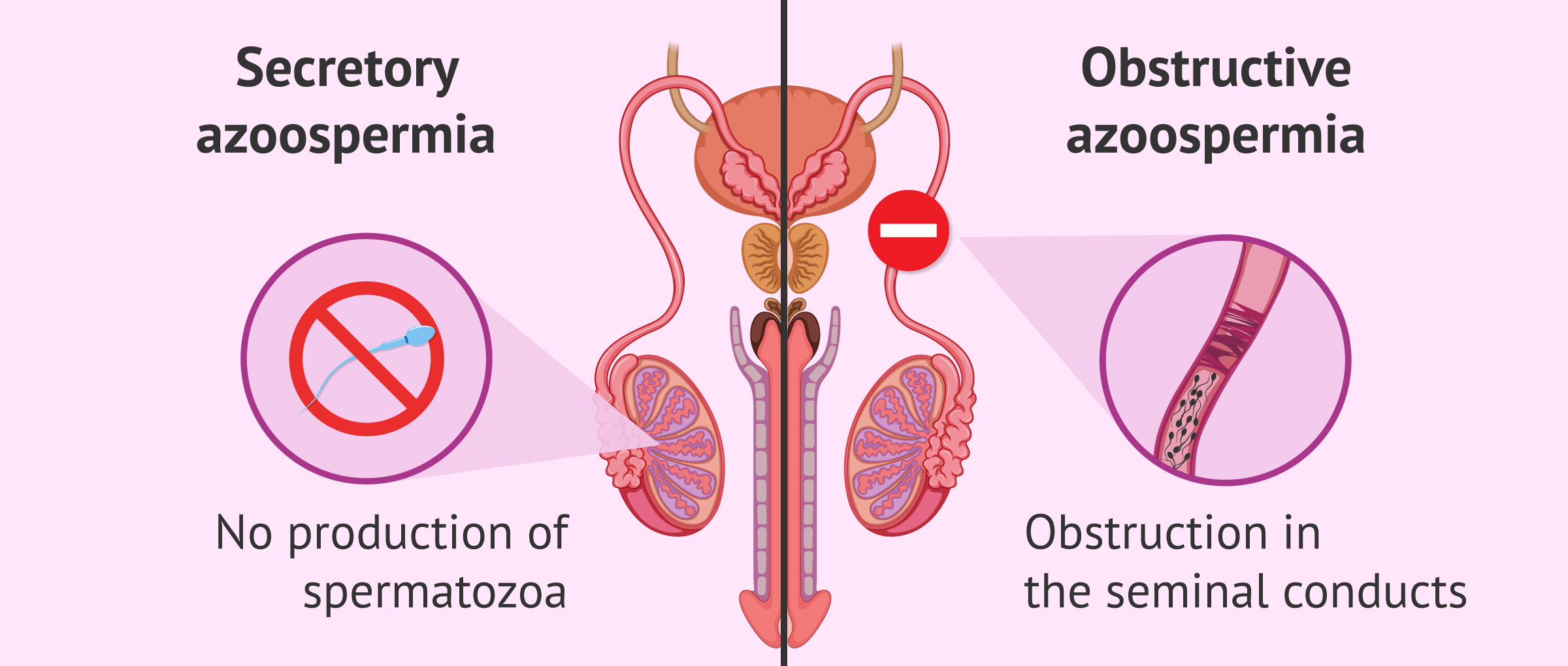 Imagen: Difference between types of azoospermia