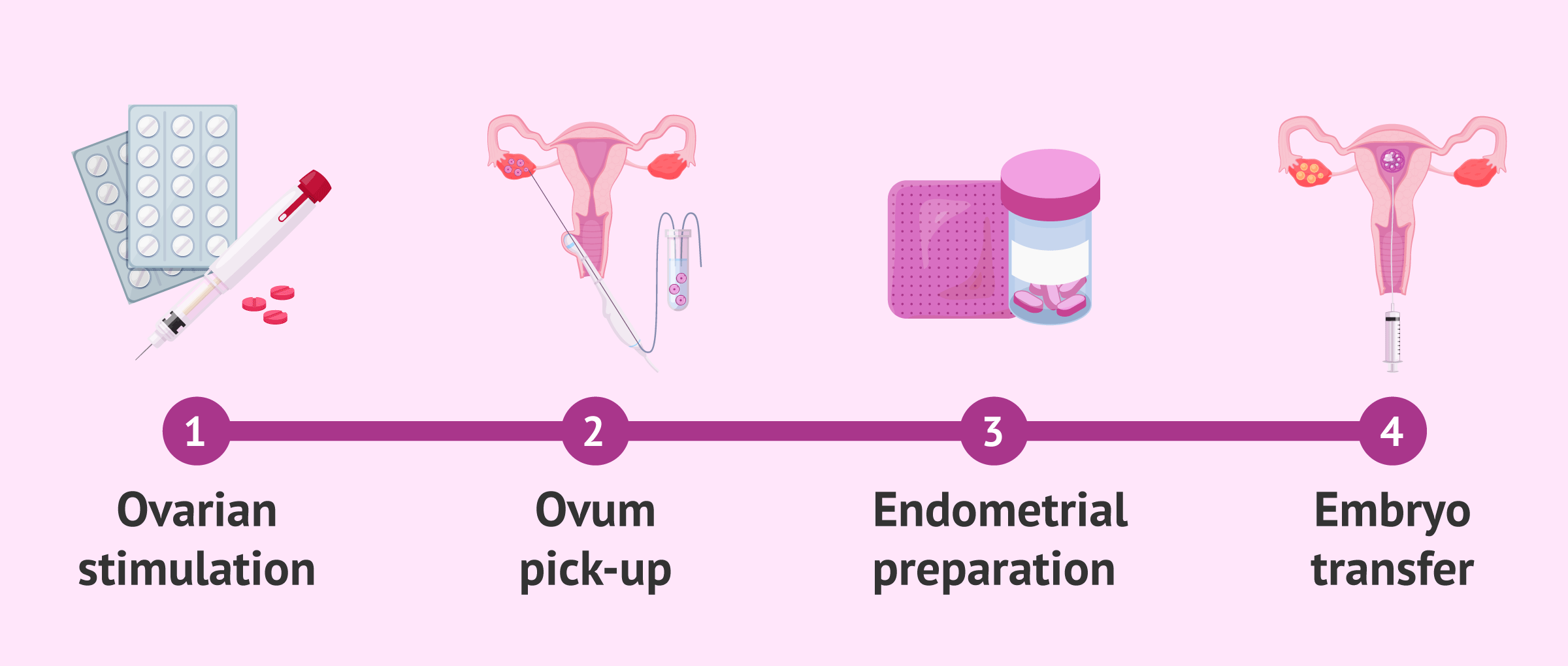 Imagen: Stages of IVF until embryo transfer