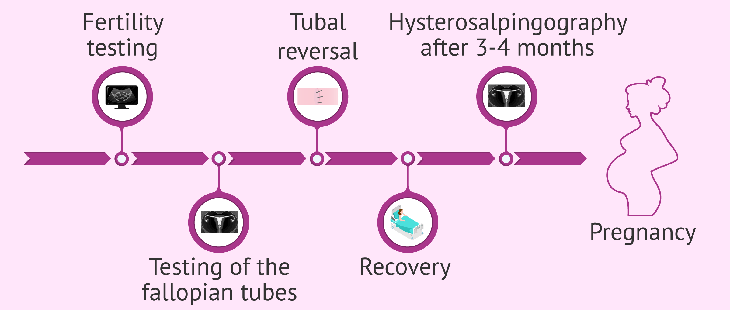 Imagen: Process of tubal ligation reversal treatment