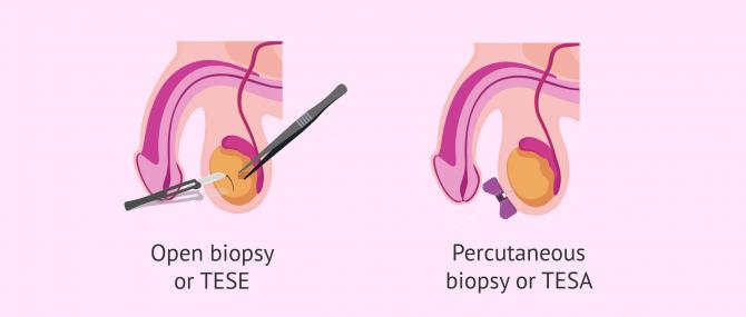 Imagen: Methods of performing testicular biopsy