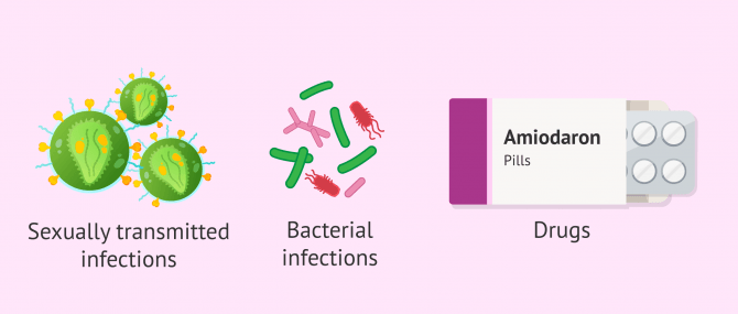 Imagen: Main causes of epididymitis