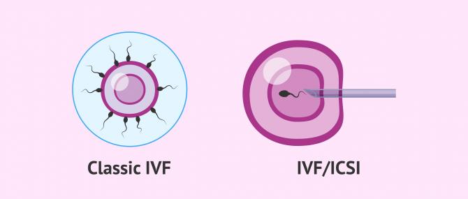 Imagen: Traditional IVF - ICSI