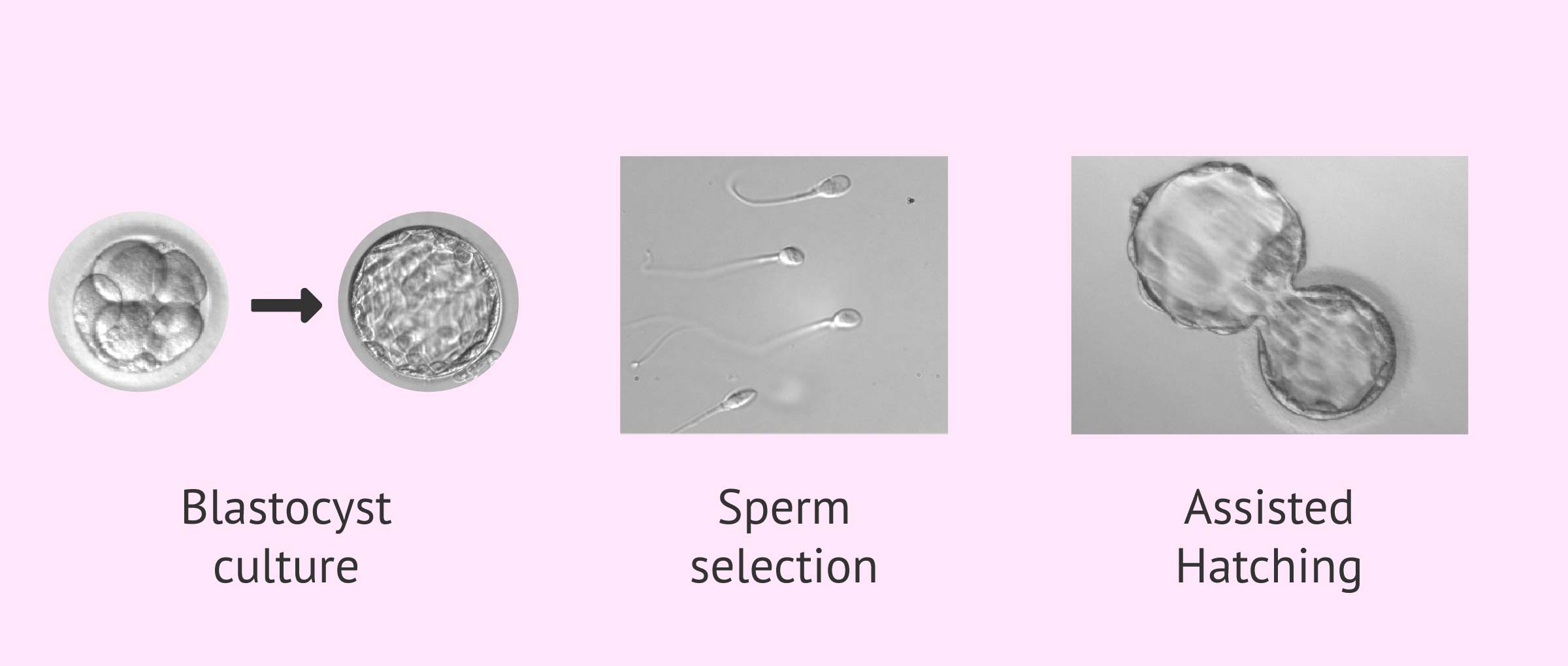 Complementary techniques in IVF