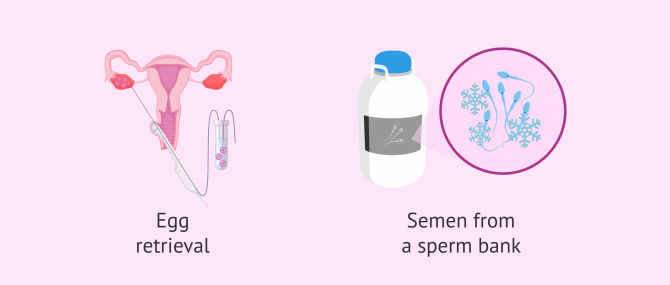 Imagen: Follicular puncture and sperm capacitation