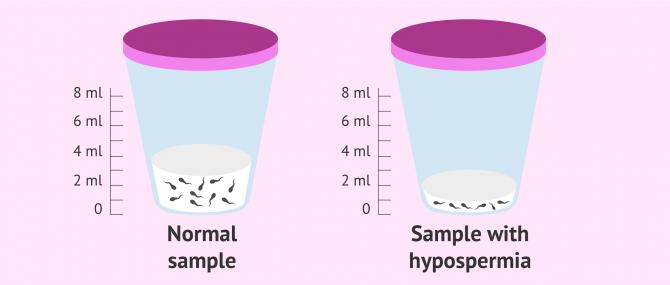 Imagen: Seminal sample with hypospermia
