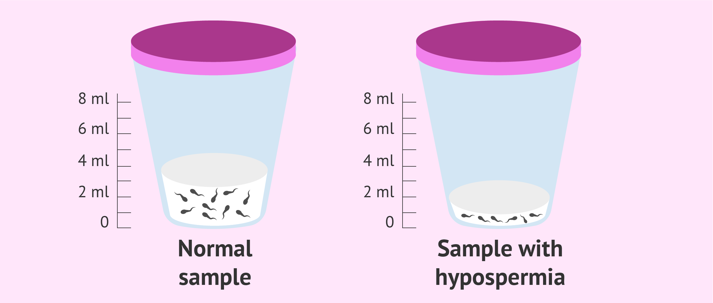 Seminal sample with hypospermia
