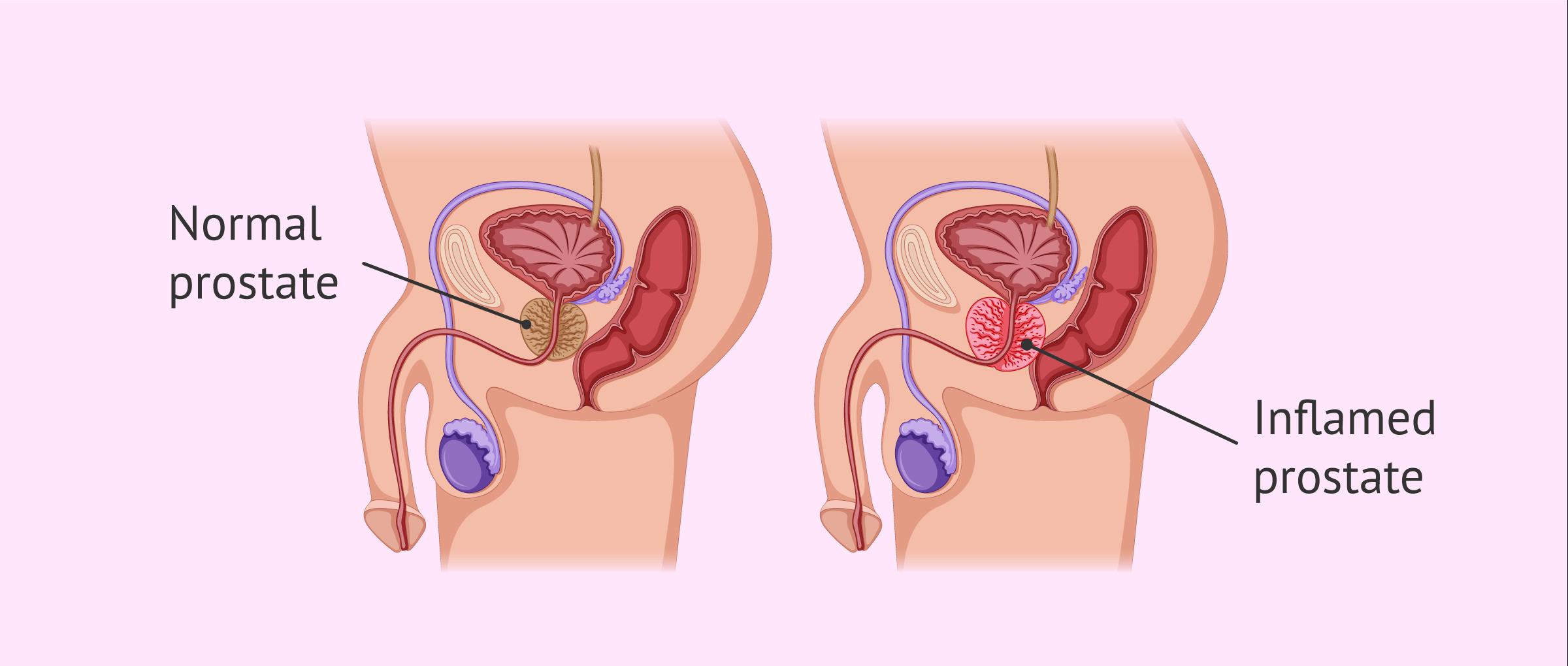 Sugártermelő cystitis prostatitis betegség
