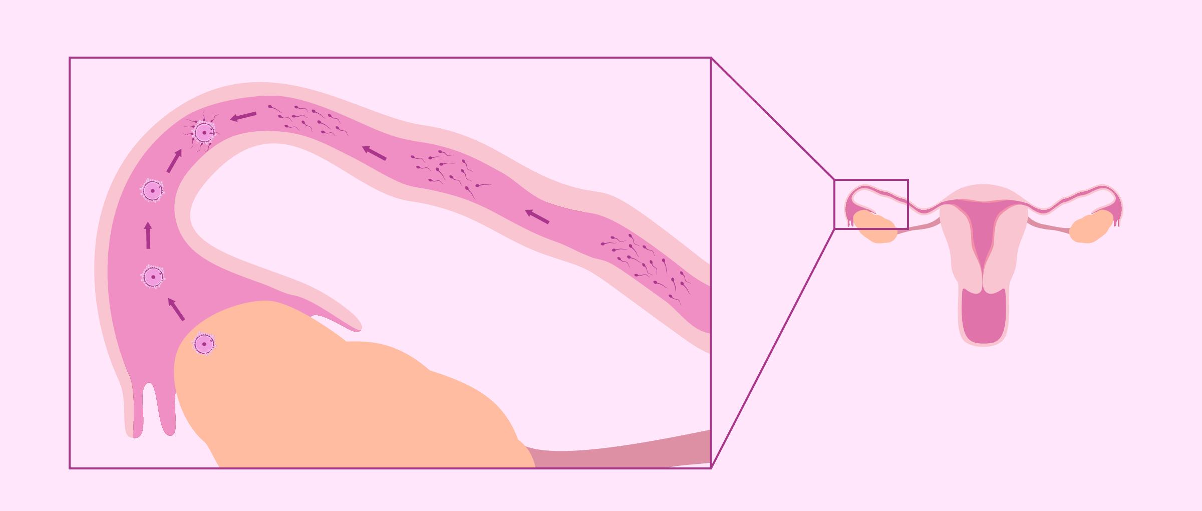 Natural fertilization in the fallopian tubes