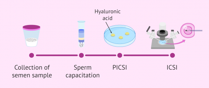 What Is PICSI or Physiological ICSI in IVF?