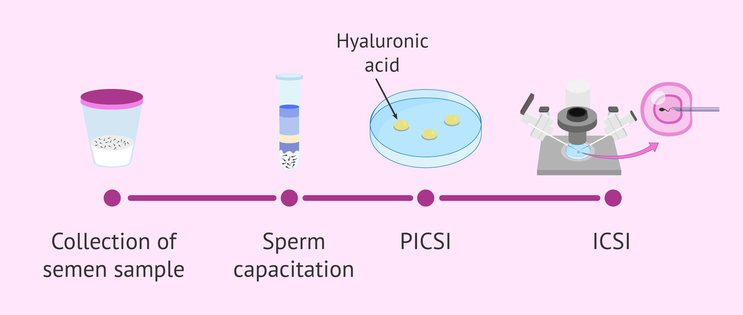 Procedure of PICSI
