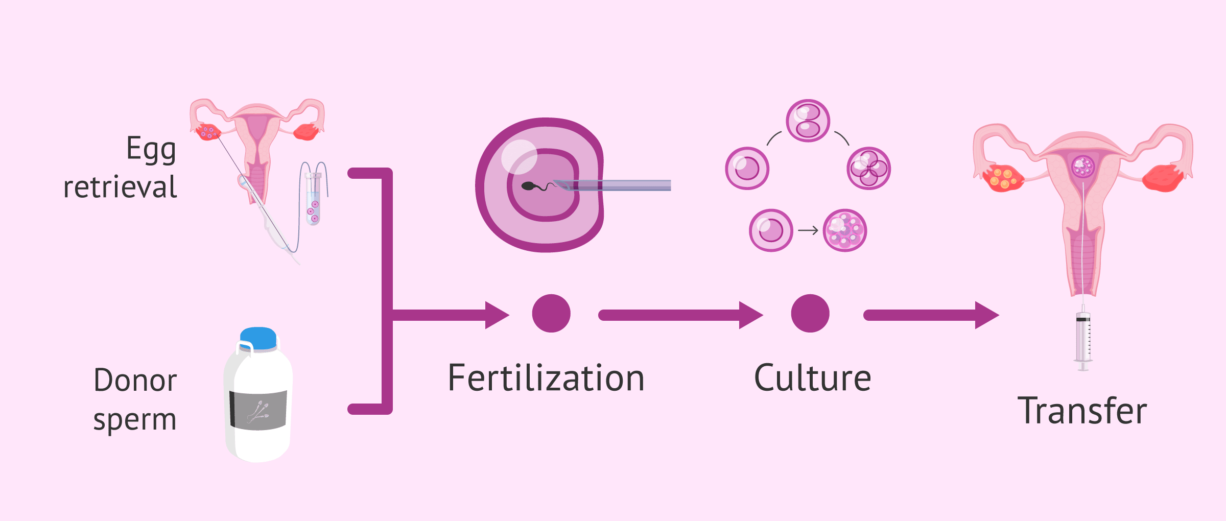 IVF process with donor sperm