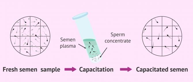Imagen: Results of the advanced semen analysis