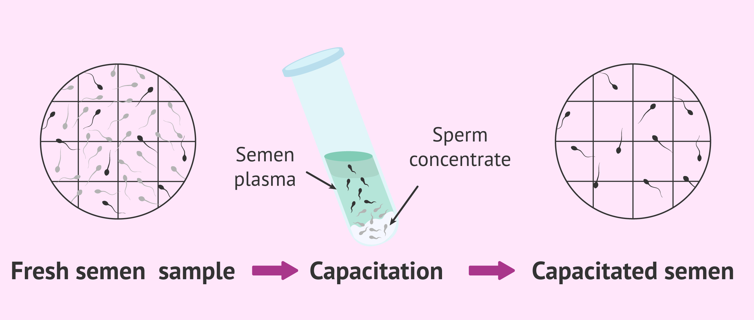 Results of the advanced semen analysis