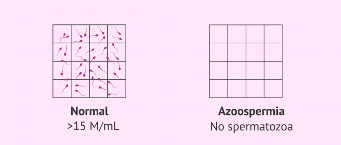 Imagen: Normal sperm sample and semen sample with azoospermia