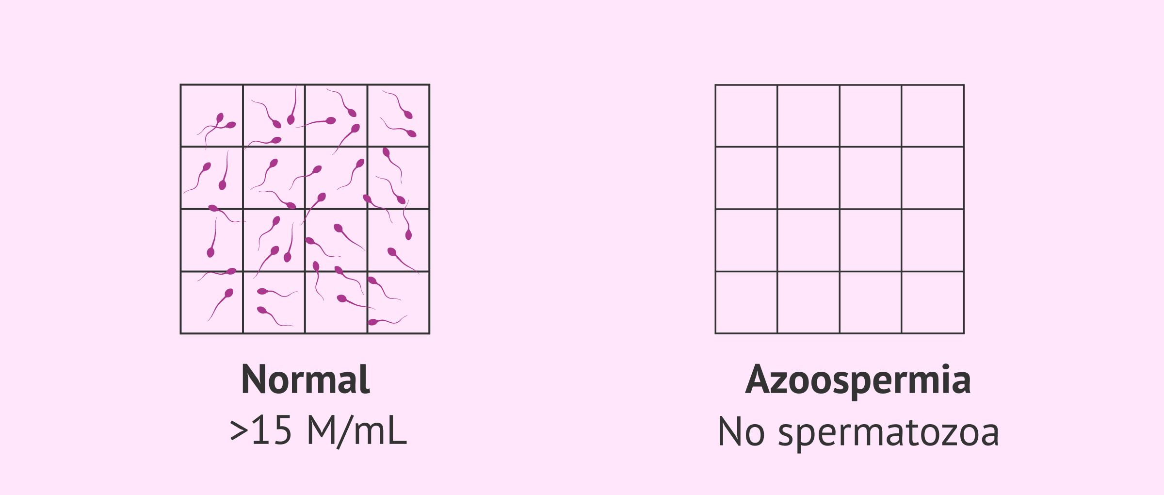 Normal sperm sample and semen sample with azoospermia