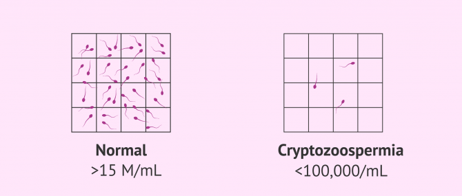 Imagen: Normal sample and sample with cryptozoospermia