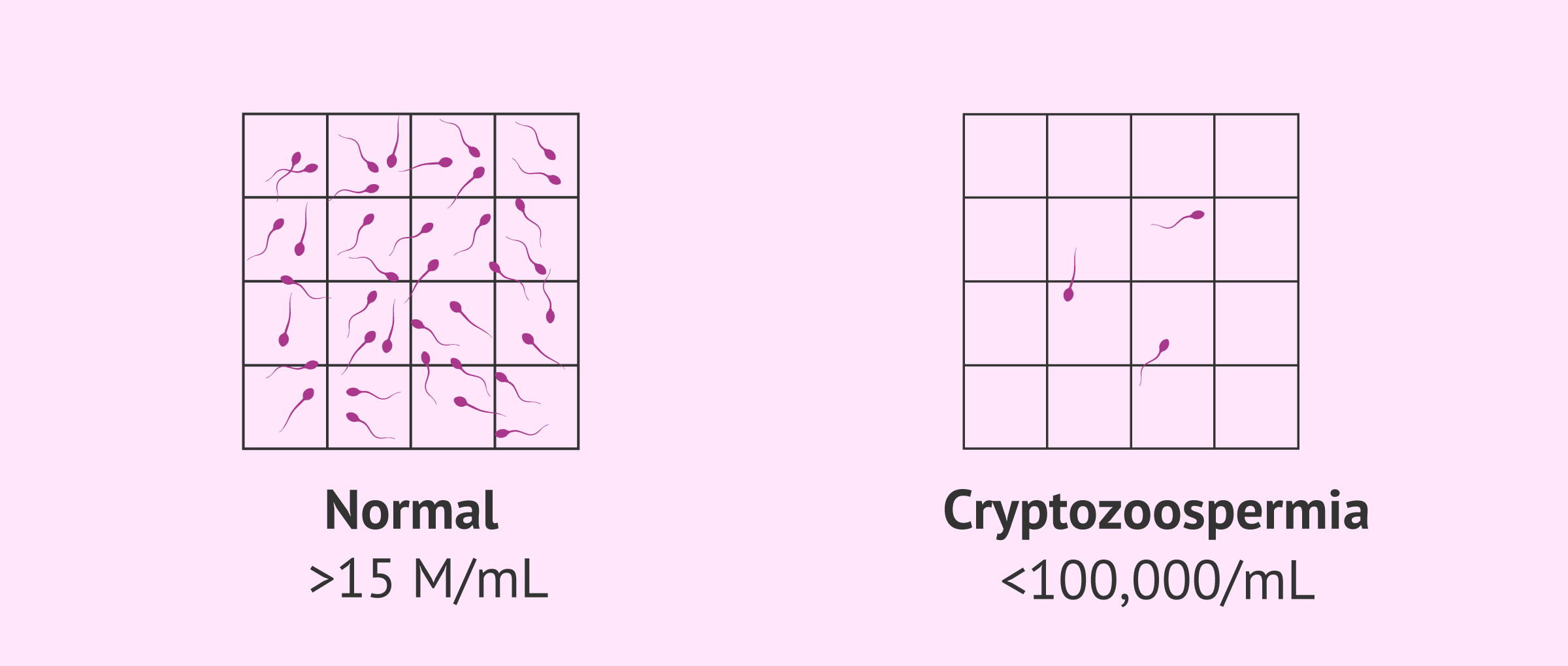 Normal sample and sample with cryptozoospermia
