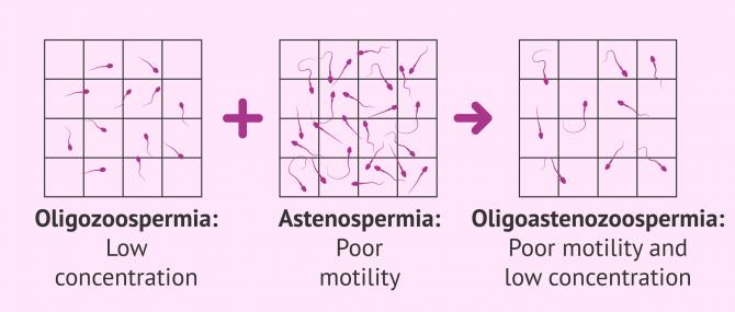 Imagen: Sperm alteration oligoasthenozoospermia