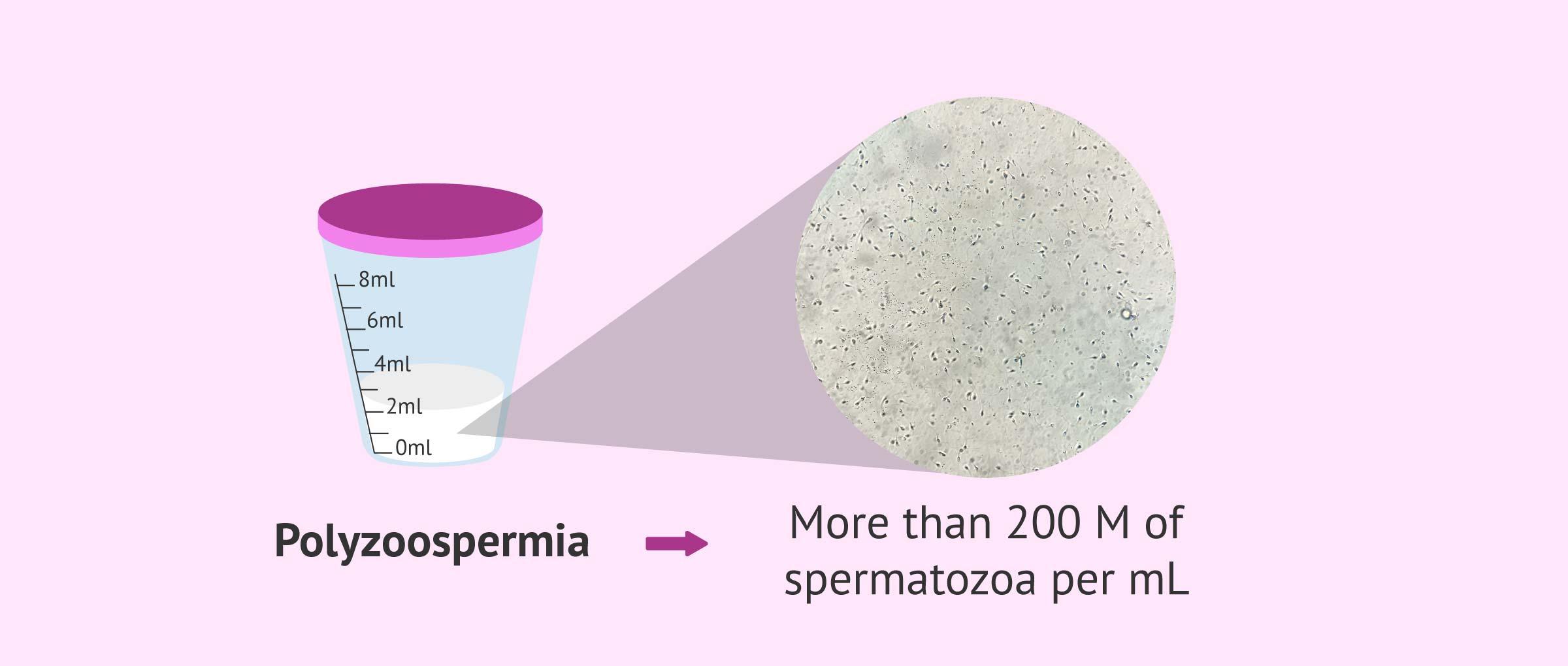 polyzoospermia