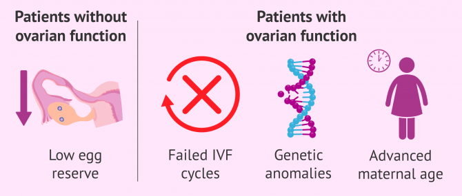 Donor-Egg IVF Procedure for Recipients – Protocol & Cost