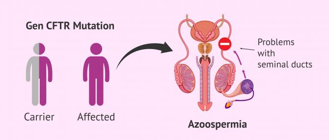 Imagen: Cystic fibrosis gene mutation