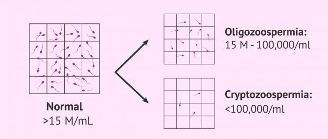 Imagen: Normal, oligozoospermic and cryptozoospermic semen sample