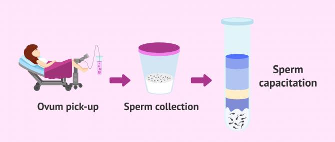 Imagen: Processing the semen sample