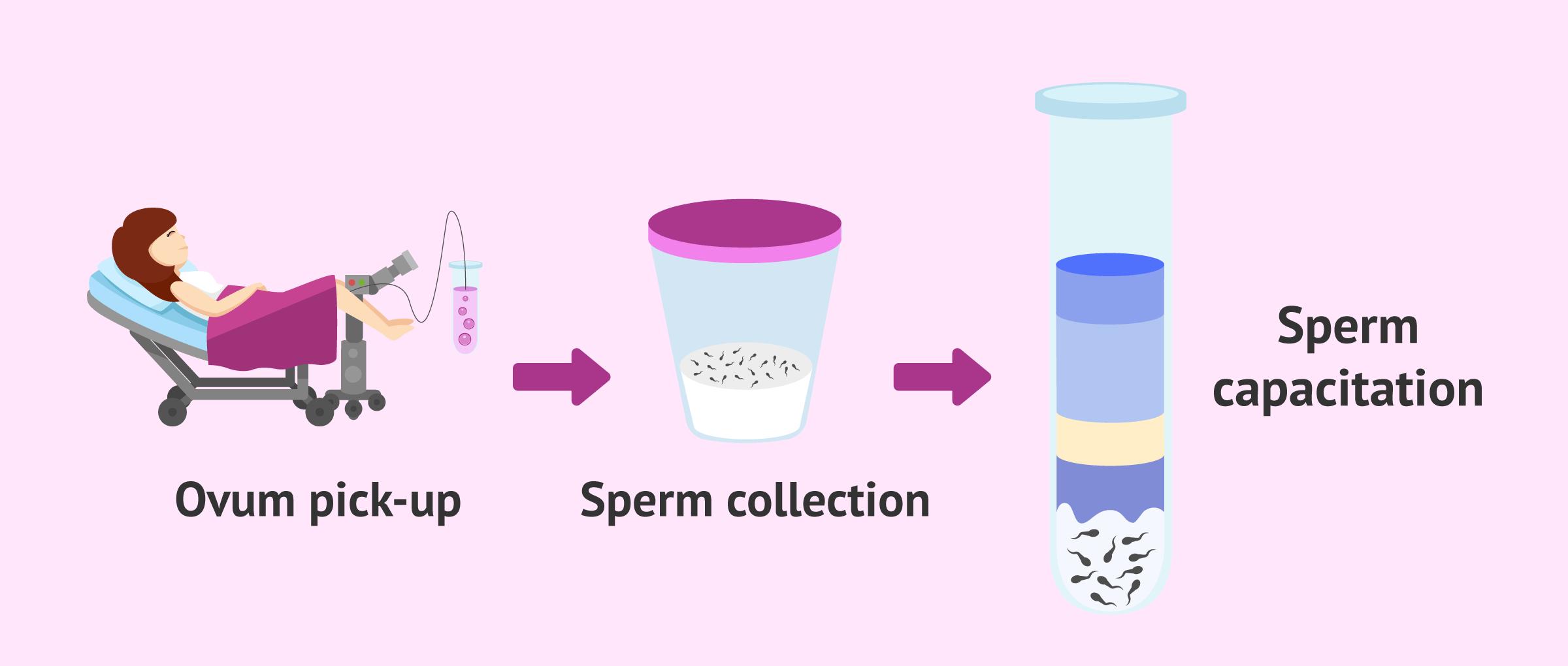 Processing the semen sample