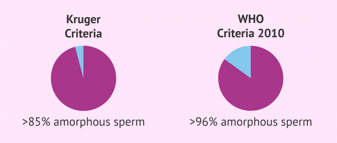 Imagen: Teratozoospermia according to Kruger and WHO criteria