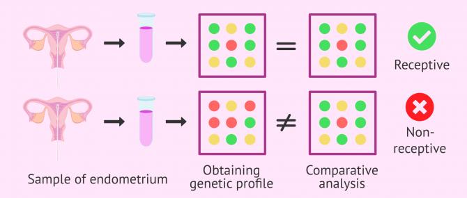 Imagen: Comparison of gene expression in the ERA Test