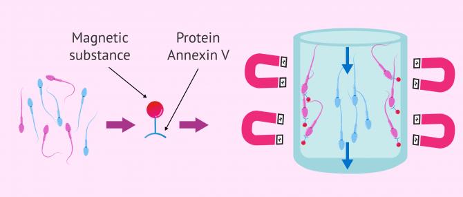 Imagen: Sperm selection with adnexin V or MACS columns