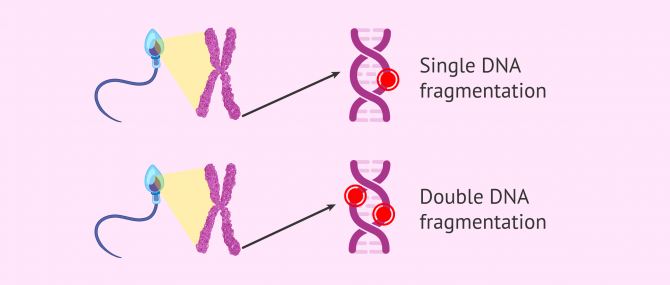 Imagen: Sperm Fragmentation Single and Double stranded