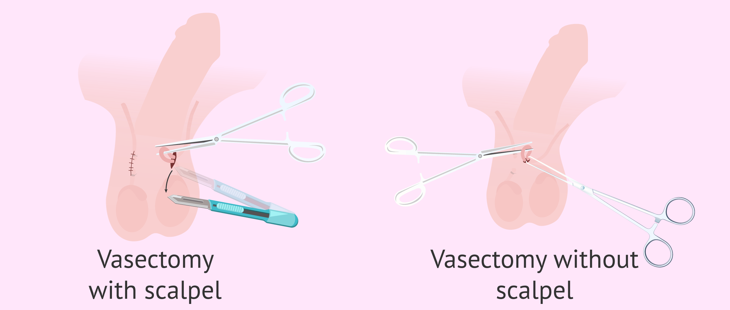What Is a Vasectomy & How Is It Performed?