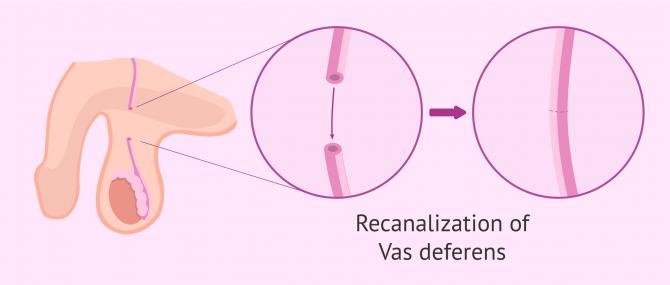 Imagen: Vasosvasostomy: recanalization of the vas deferens