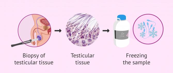 Imagen: How is testicular tissue frozen?