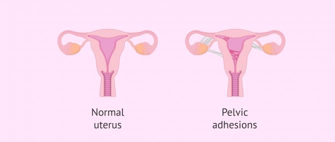 Imagen: uterus con adhesions