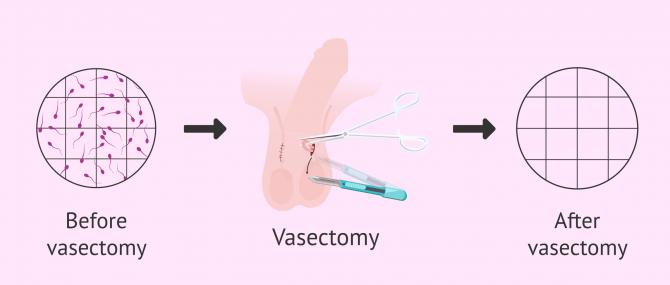 Imagen: Azoospermia after vasectomy